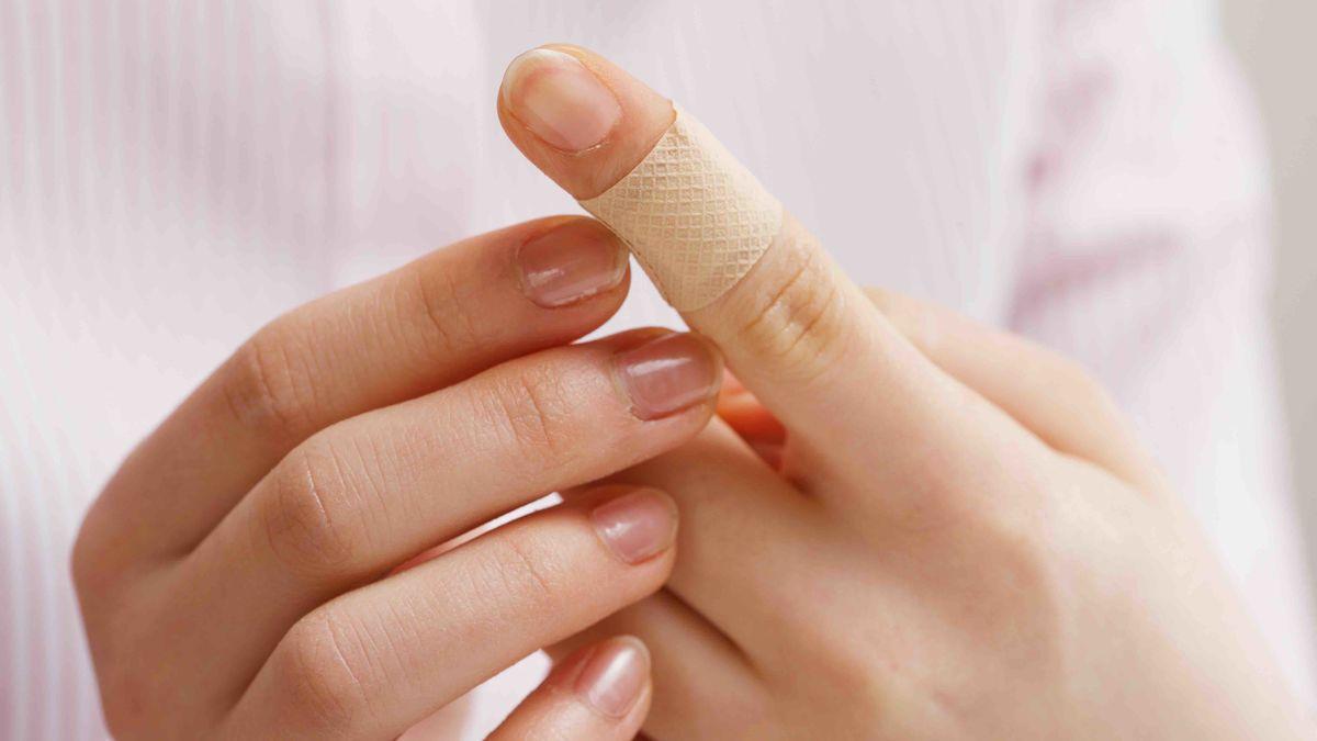 In den Finger geschnitten: Schnittwunden versorgen